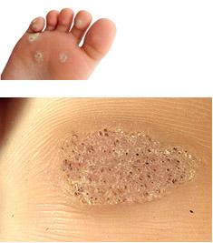 Veruca foot infection treatment, Încărcat de - Veruca foot disease