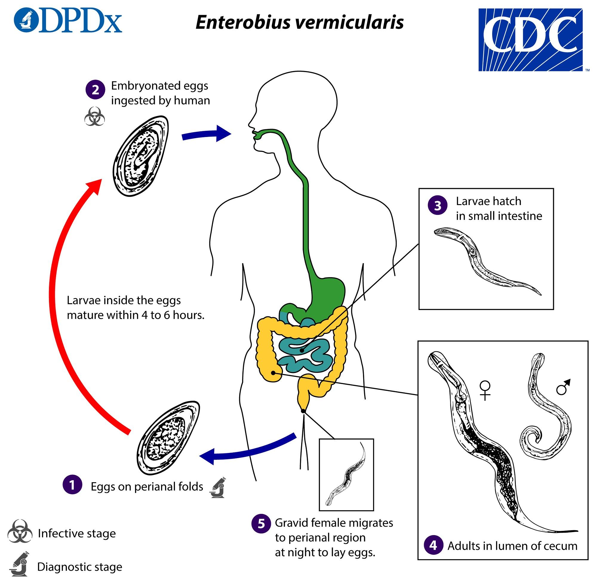 Treatment of oxyuris worm, Pin Worms - Enterobius Vermicularis detoxifiere usoara si rapida