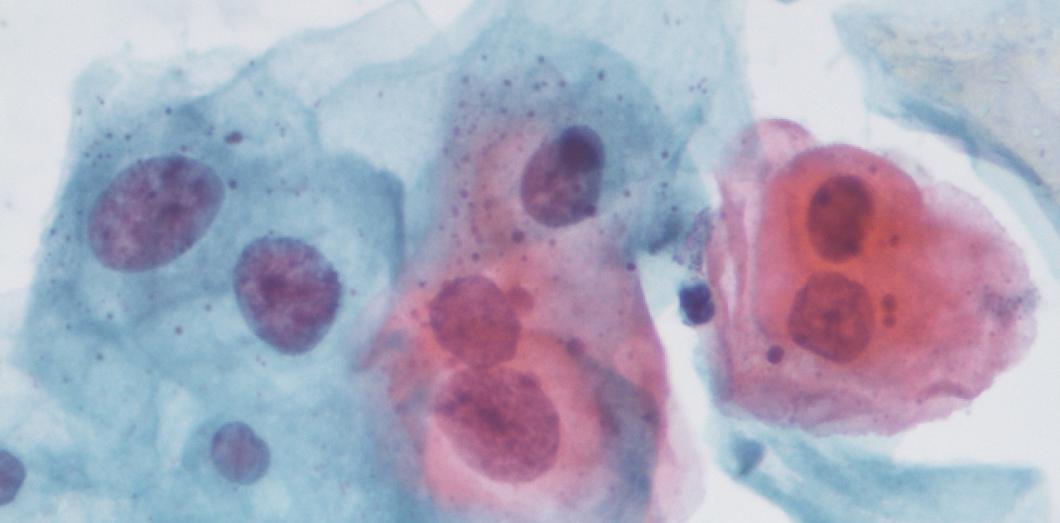 papillomavirus positif enceinte paraziți în imaginile fecale umane