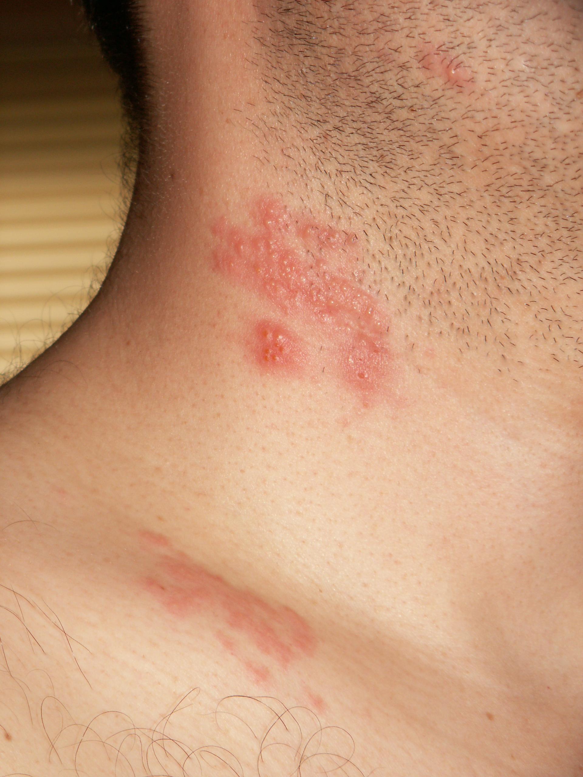 Hpv skin rash on face Warts hands rash
