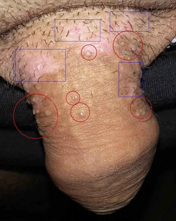 hpv avec condylome papilloma virus malattie della pelle