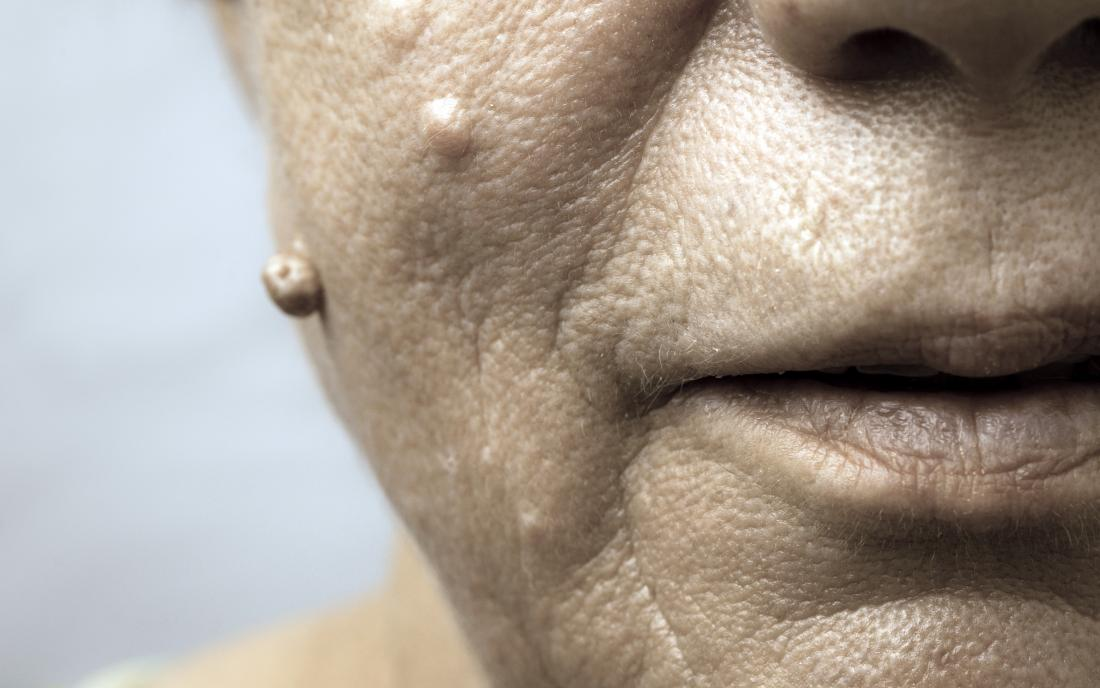 hpv face warts benign intracanalicular papilloma