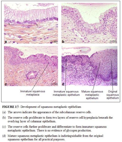 Hpv squamous metaplasia - thecroppers.ro