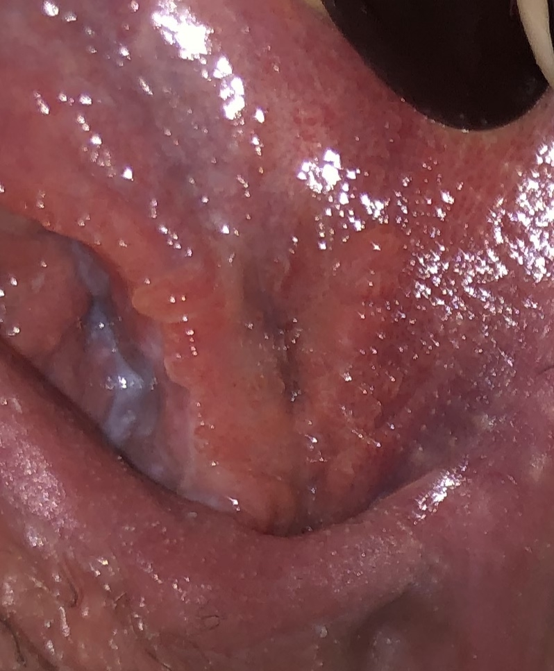 hpv to herpes
