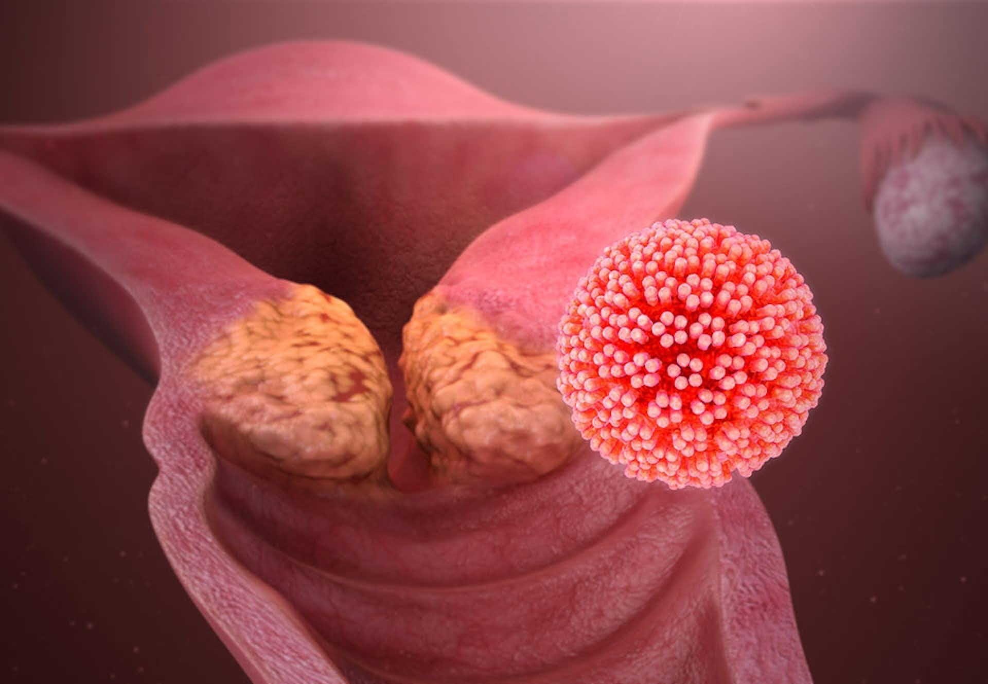 Molluscum papiloma virus,