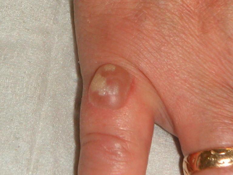Hpv virus wratten handen. Dede koswara tot