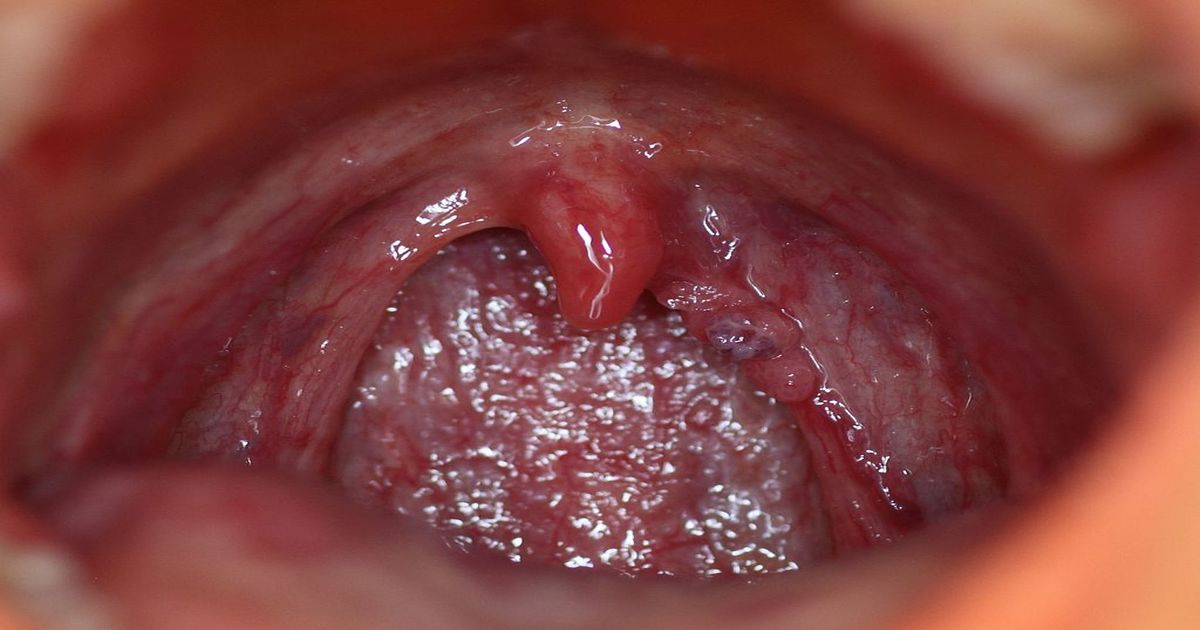 hpv warts in the throat