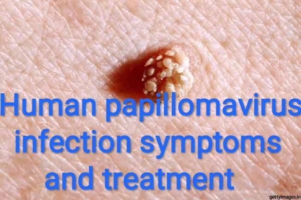 human papilloma virus how to treat