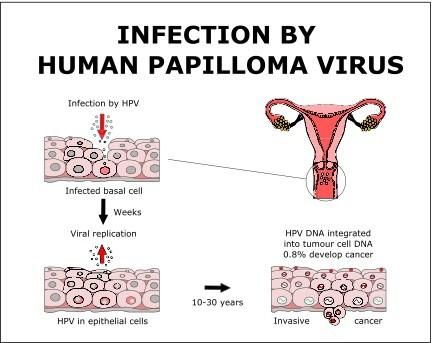 Hpv virus treatment natural - Papillomavirus natural treatment - thecroppers.ro