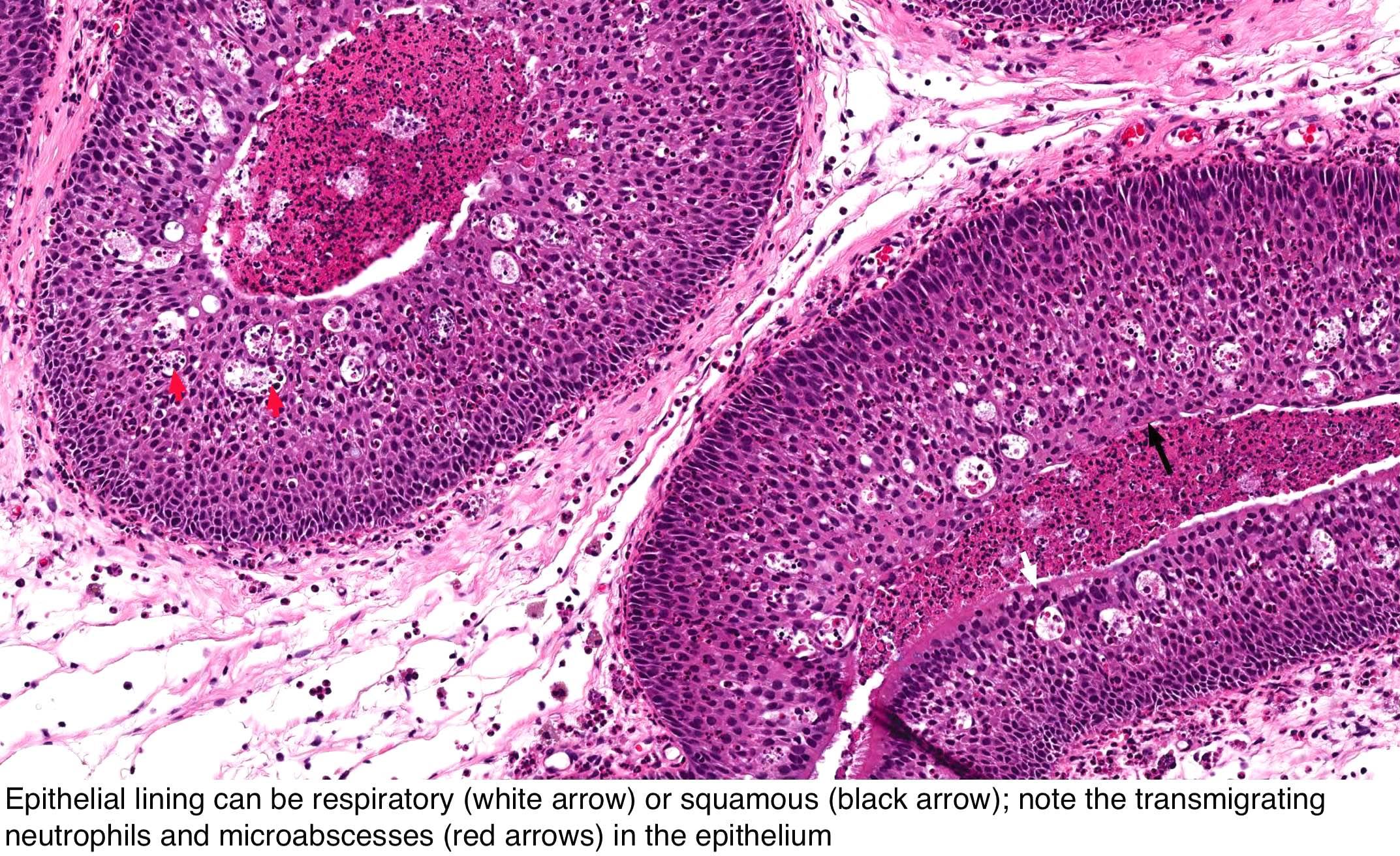 inverted papilloma malignant degeneration