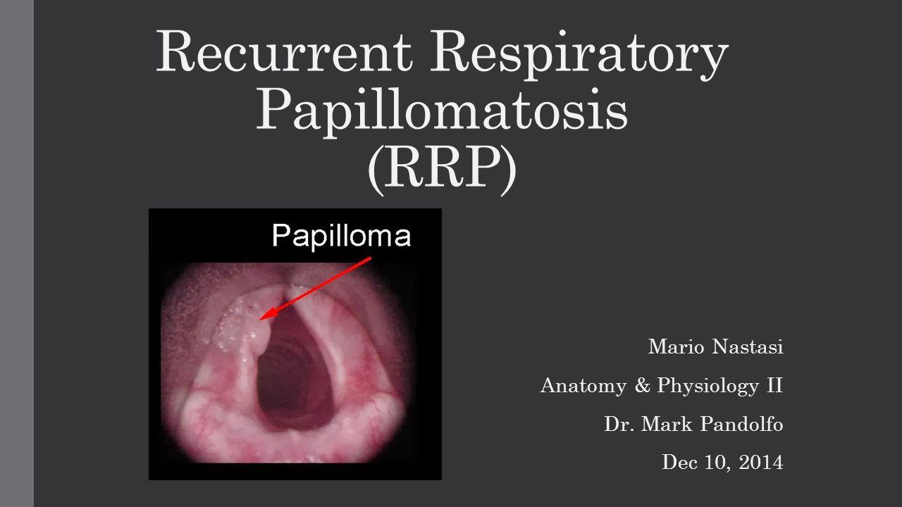 laryngeal papillomatosis baby