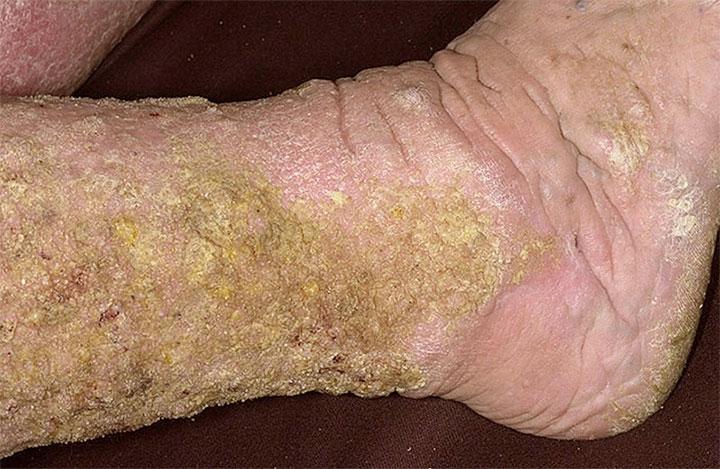 lymphedema papillomatosis treatment