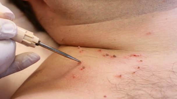 papilloma be removed antihelmintice în opistohorie