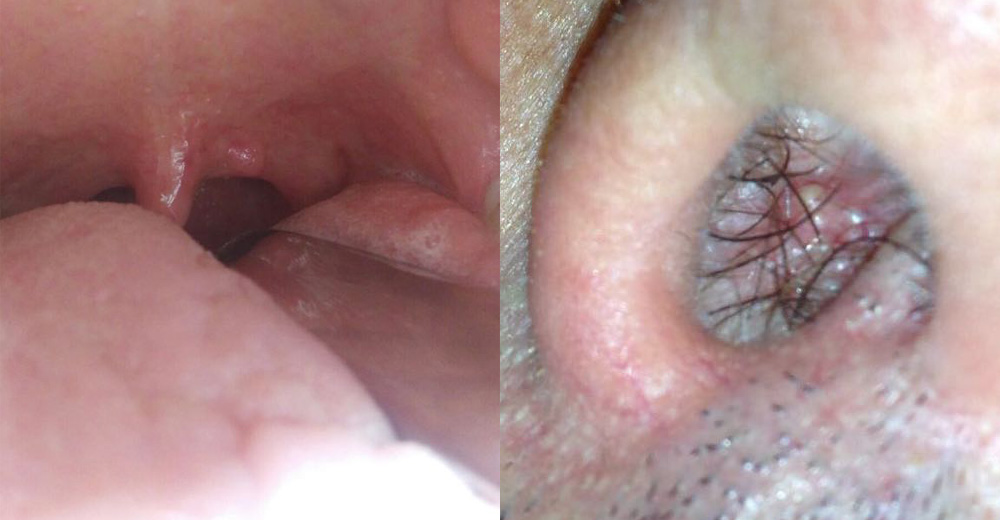 papilloma e faringite