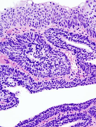 Papilloma skin histology Skin papilloma histopathology