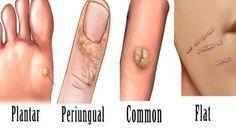papilloma virus rimedi naturali