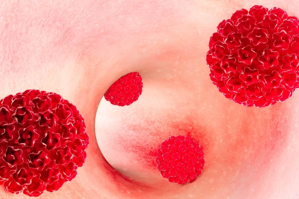 Tumore all ano papilloma virus - Papilloma virus e un tumore