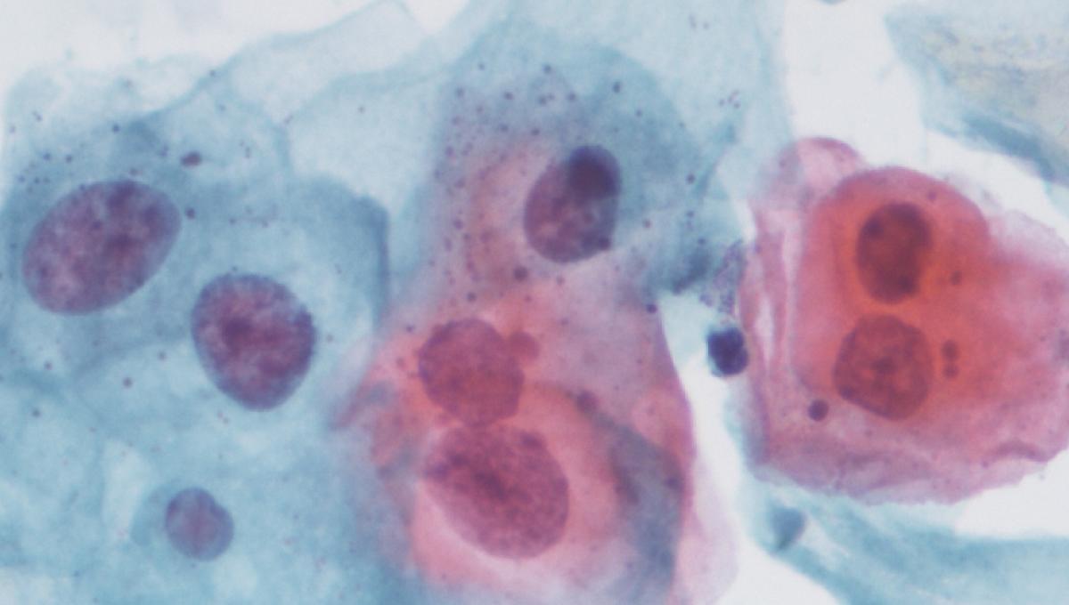Pastrav de pastrav. Human papillomavirus infection variants