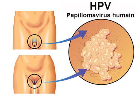 condiloamele cauzează apariția eosinophils helminth infection