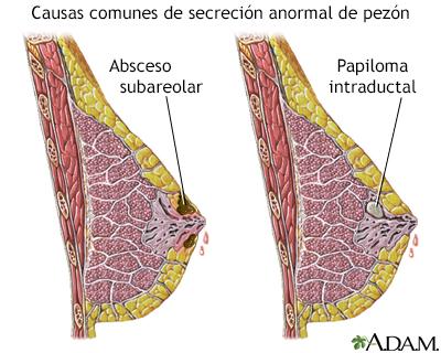 papiloma na mama e benigno
