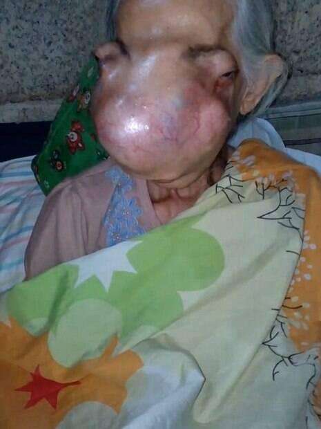 papillomavirus disparait il human papillomavirus effect on skin