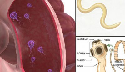 ouă de vierme în tratamentul scaunelor simptomelor sarcina după tratamentul cu viermi