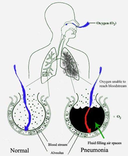 paraziți în aer schistosomiasis vietnam