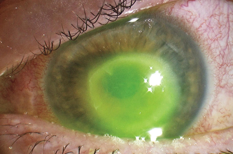 parazit în ochi fir grâu la copii