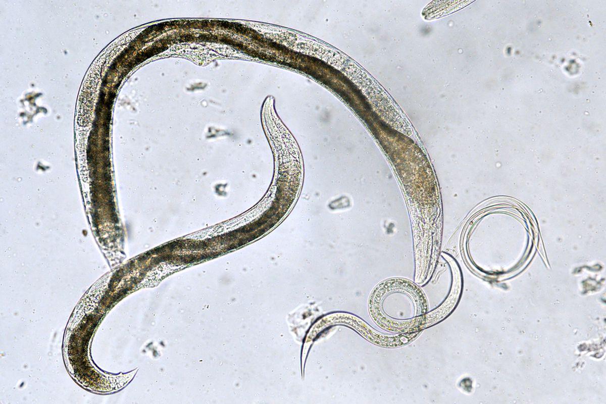 paraziti intestinali oxiuri