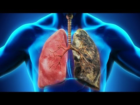 Retete pentru detoxifierea plamanilor la fumatori