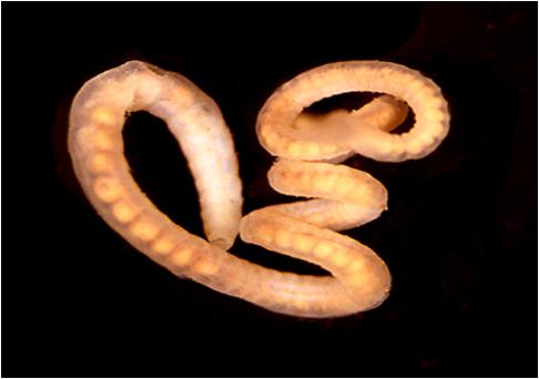 Simptomele viermilor în tratamentul viermilor. Principalele simptome ale paraziților intestinali