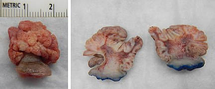 Squamous papilloma esophagus hpv - thecroppers.ro