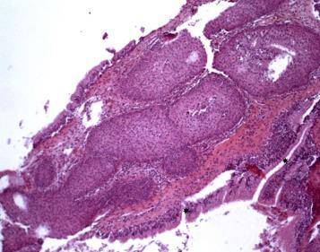 symptoms of inverted nasal papilloma