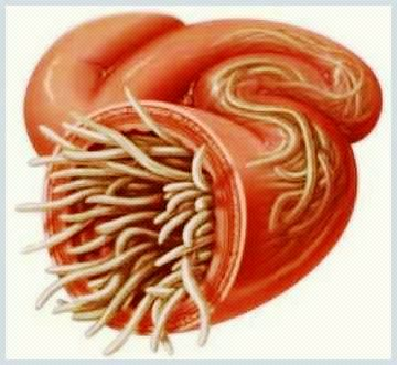 Dacă copilul are simptome de viermi, tratament - Top articole