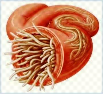 Un gastroenterolog tratează paraziții?