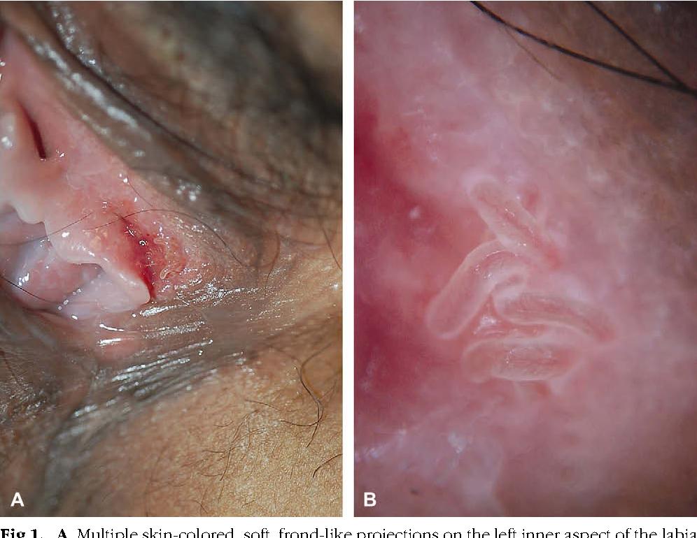 vestibular papillomatosis inflamed