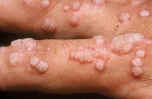 Virus del papiloma en el ano