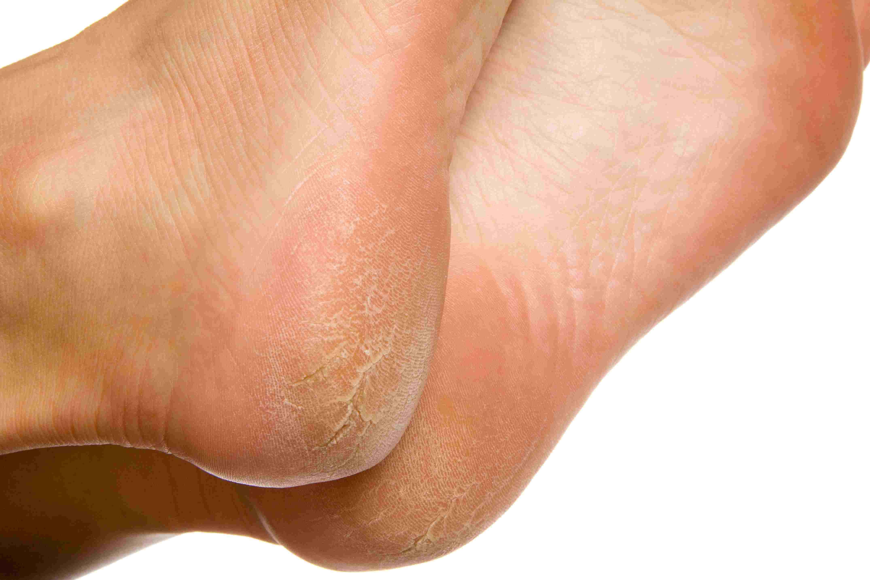 wart on foot black center papilomul a trecut de la sine