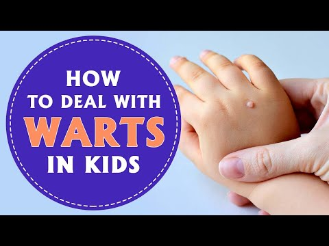 wart on foot toddler