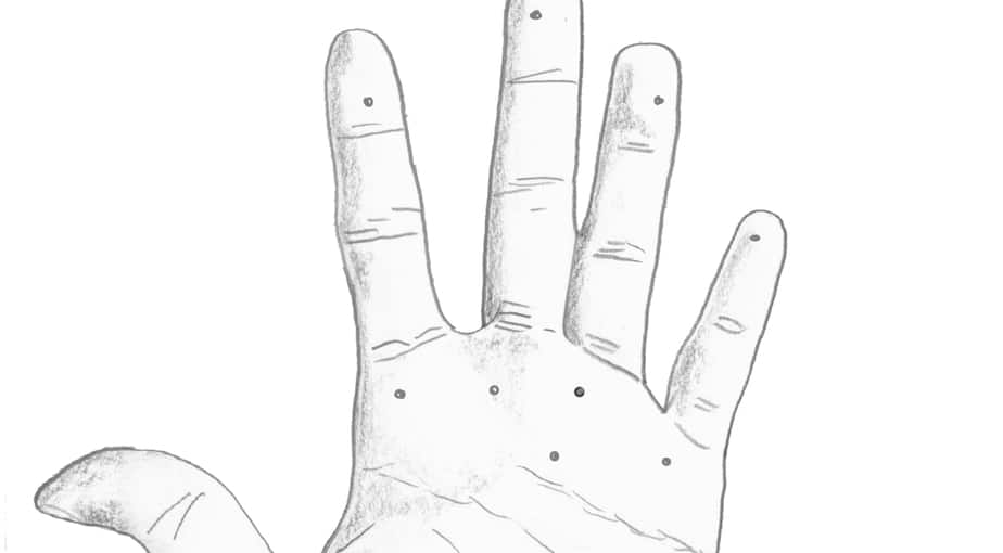 warts on hands palms to stick and poke