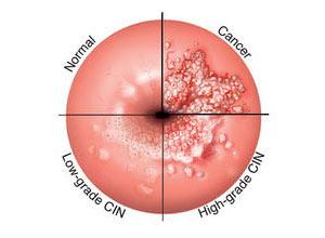Hpv nelluomo esami - thecroppers.ro - Esame papilloma virus nell uomo