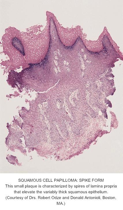 Esophagus papilloma pathology outlines