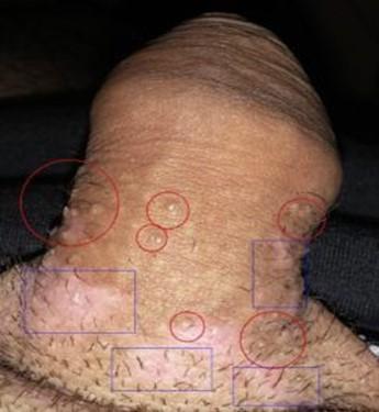 virus del papiloma de alto riesgo