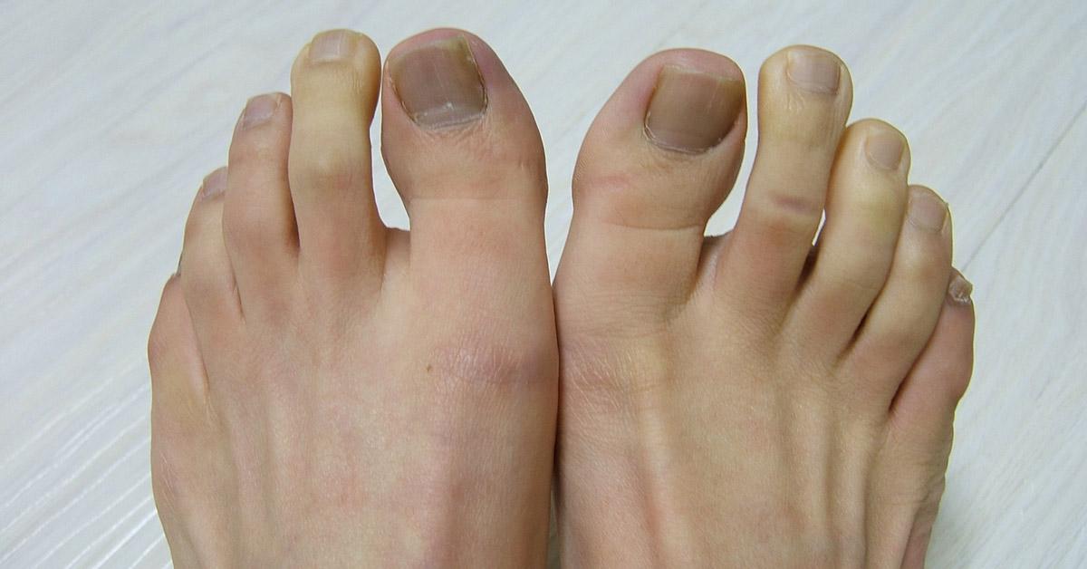 Ulcer liber între degetele de la picioare