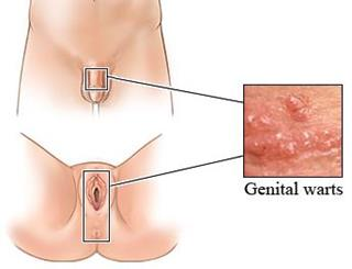 Tincturi medicinale nucșoară varicele - Virus del papiloma sintomas y tratamiento
