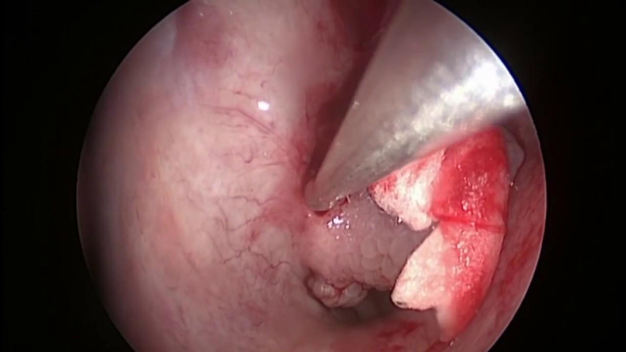 Papiloma fosa nasal. Unde puteți elimina papilomele în perm