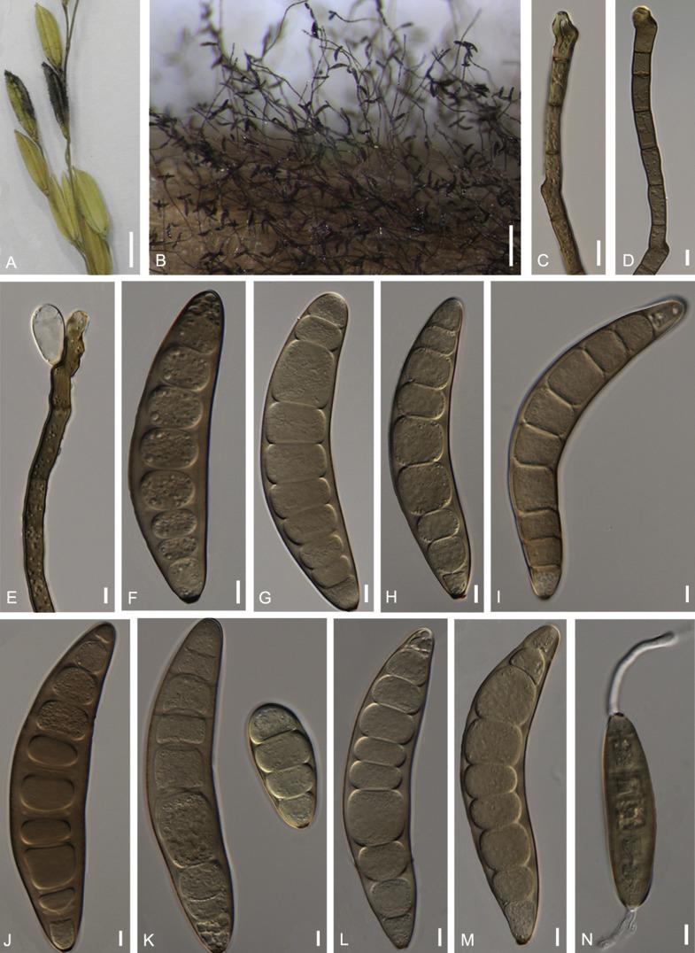 morphologist helminthosporium sp