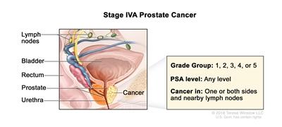 prostate cancer abdominal lymph nodes