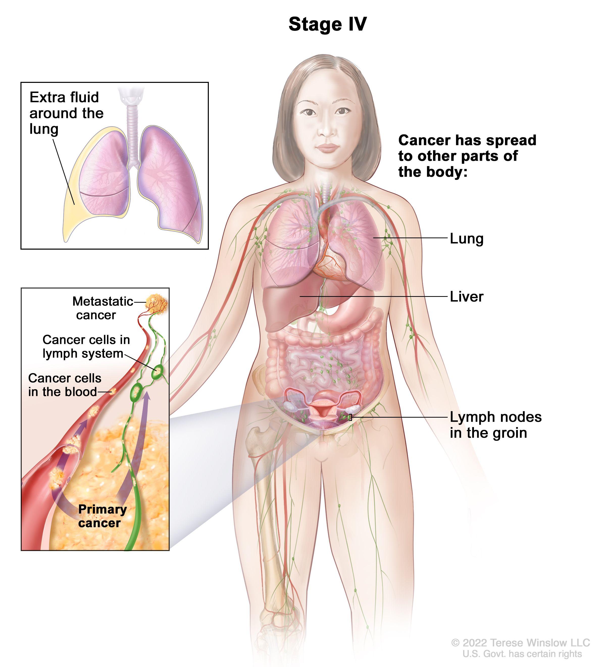 Cancer peritoneal avanzado, Încărcat de