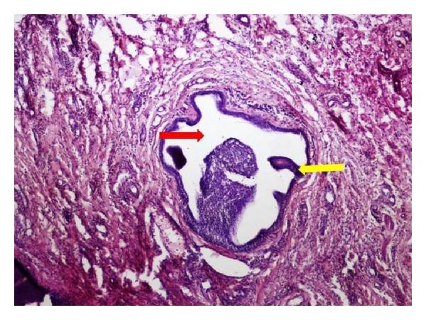 papilloma of parotid gland termenii tratamentului negi genitale